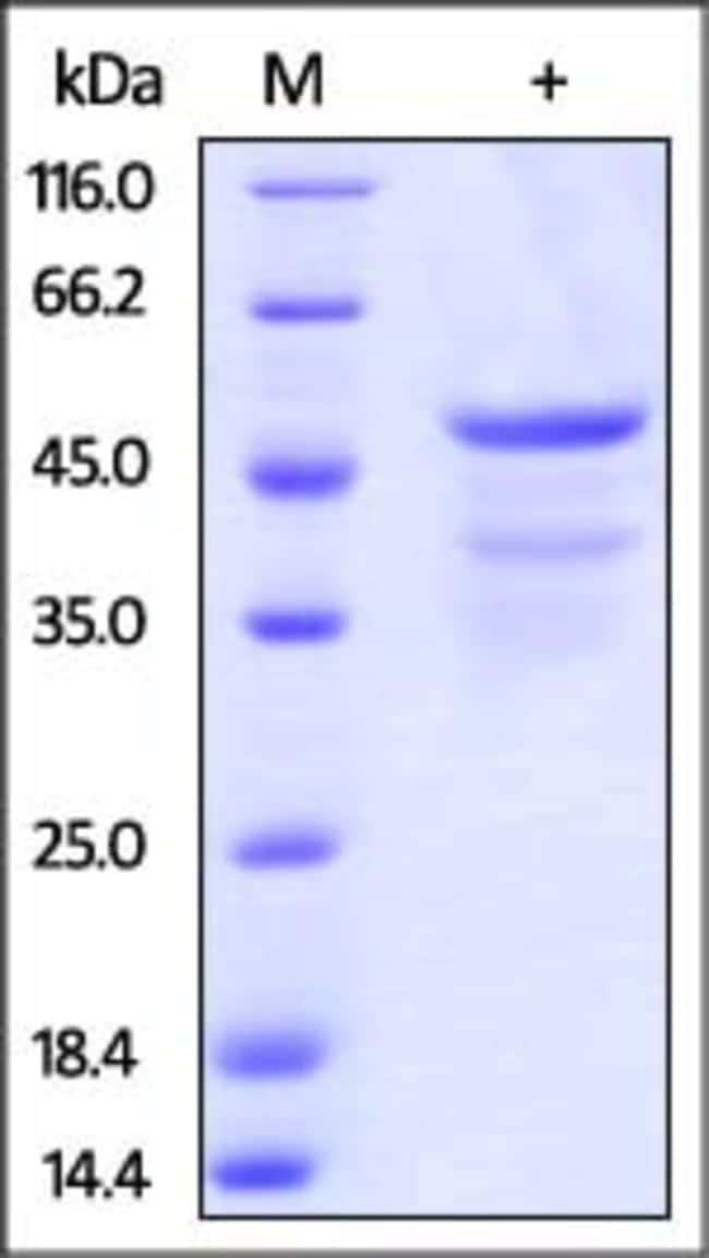 ACROBiosystemsHuman CD99 / MIC2 Protein, Fc Tag 100 ug ACROBiosystemsHuman CD99 / MIC2 Protein, Fc Tag