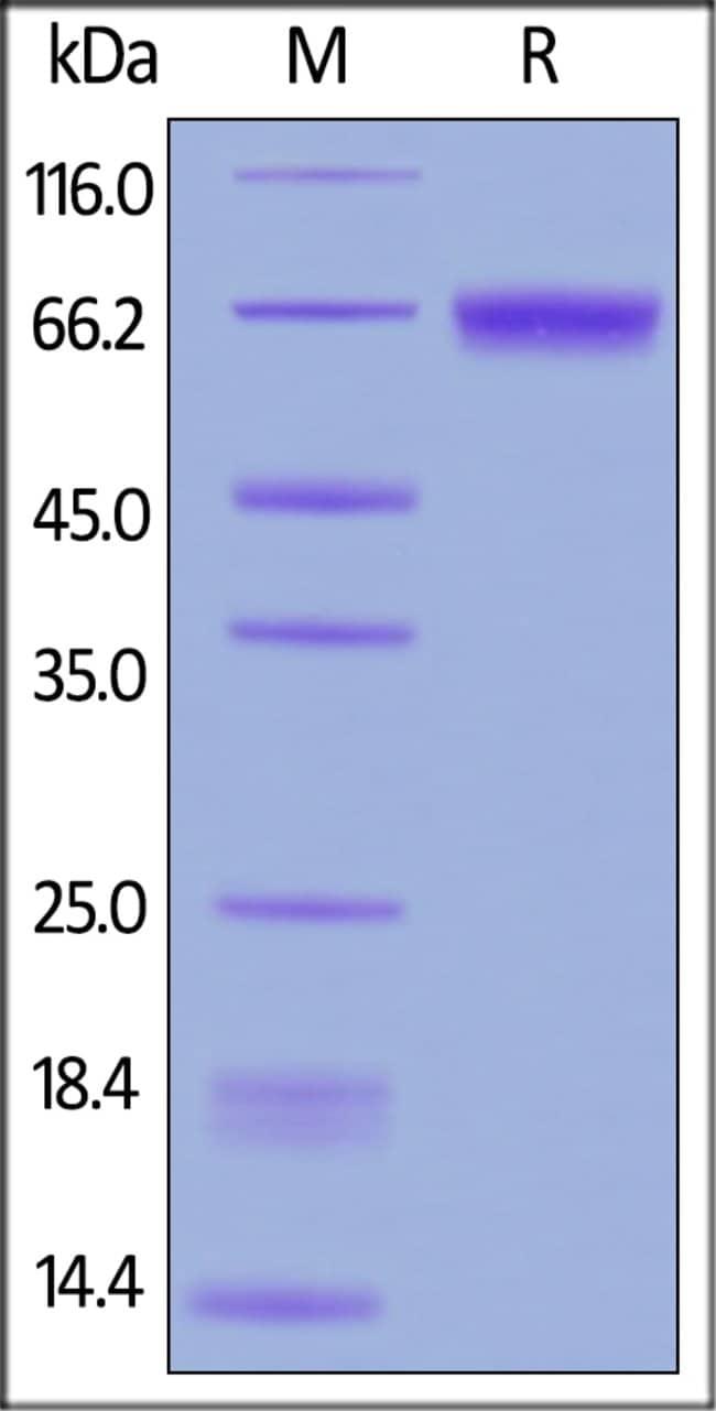 ACROBiosystemsHuman CD229 / SLAMF3 Protein, His Tag 100 ug ACROBiosystemsHuman CD229 / SLAMF3 Protein, His Tag