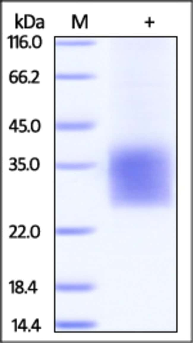 ACROBiosystemsCynomolgus CD3 delta Protein, His Tag 100 ug ACROBiosystemsCynomolgus CD3 delta Protein, His Tag