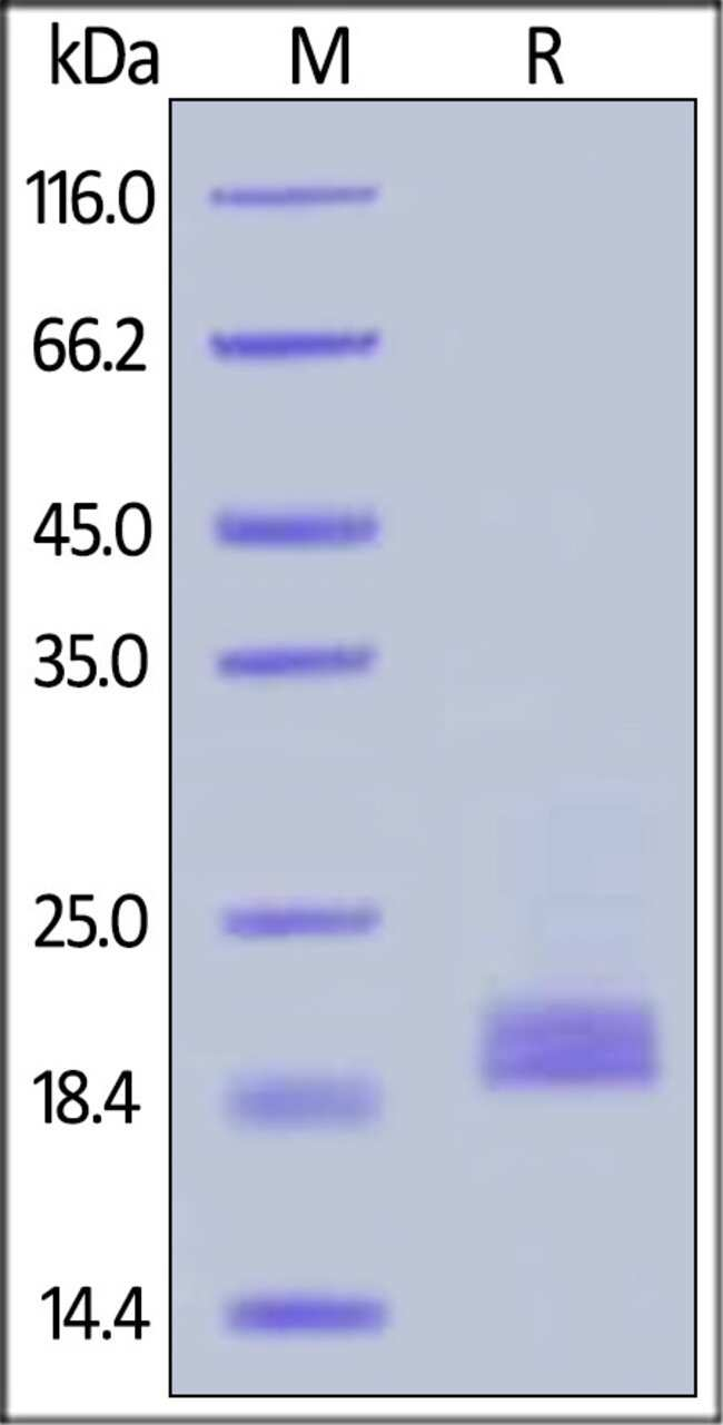 ACROBiosystems25ug Biotinylated Cynomolgus CD3E&CD3D Heterodimer Protein, His,Avitag&Tag Free  Produkte