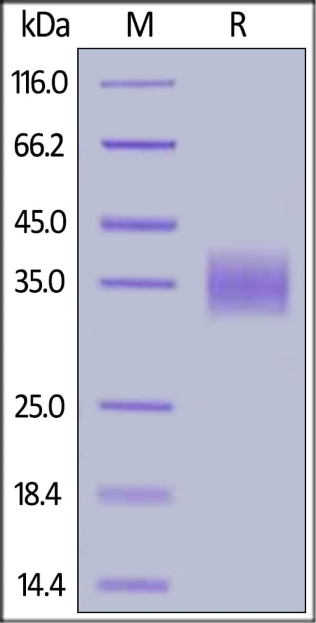 ACROBiosystems100UG Mouse LILRB4 / CD85k / ILT3 Protein, His Tag  Produkte