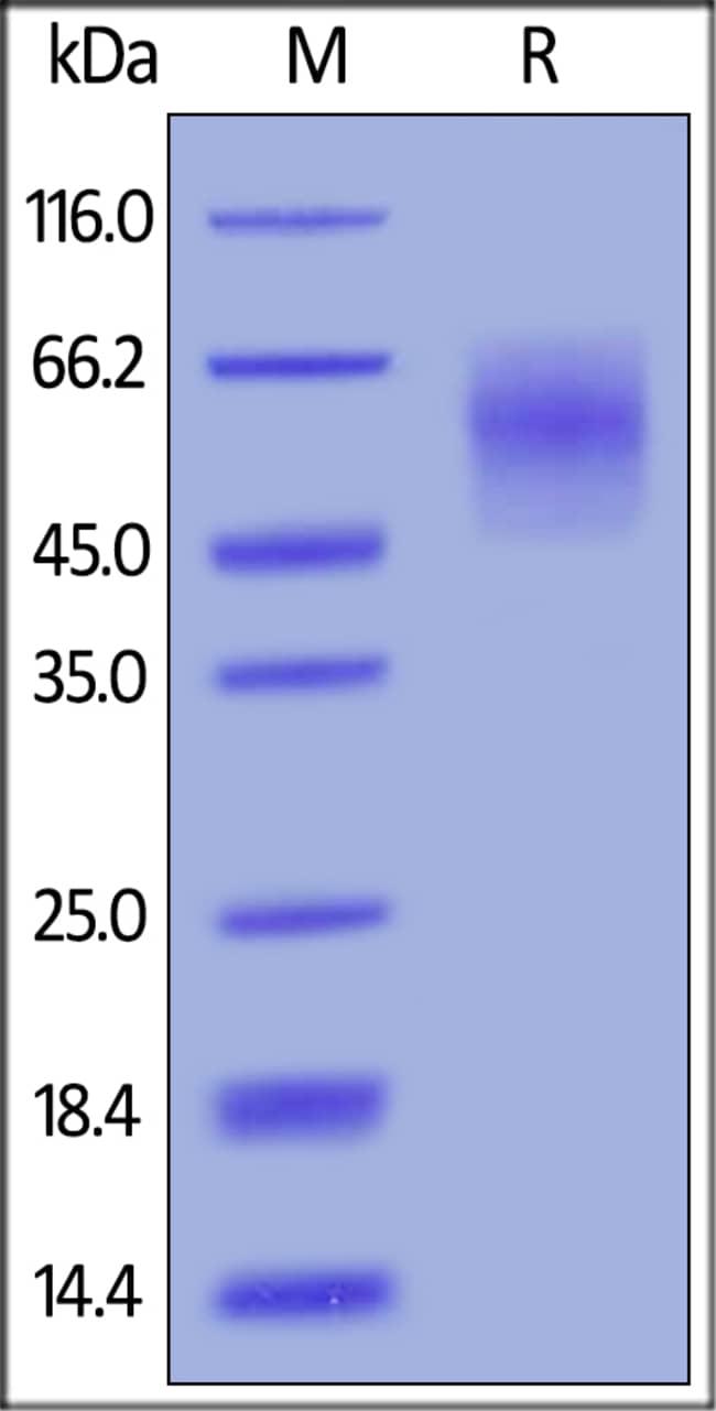 ACROBiosystems25ug Biotinylated Human CEACAM-6 / CD66c Protein,His,Avitag  Produkte