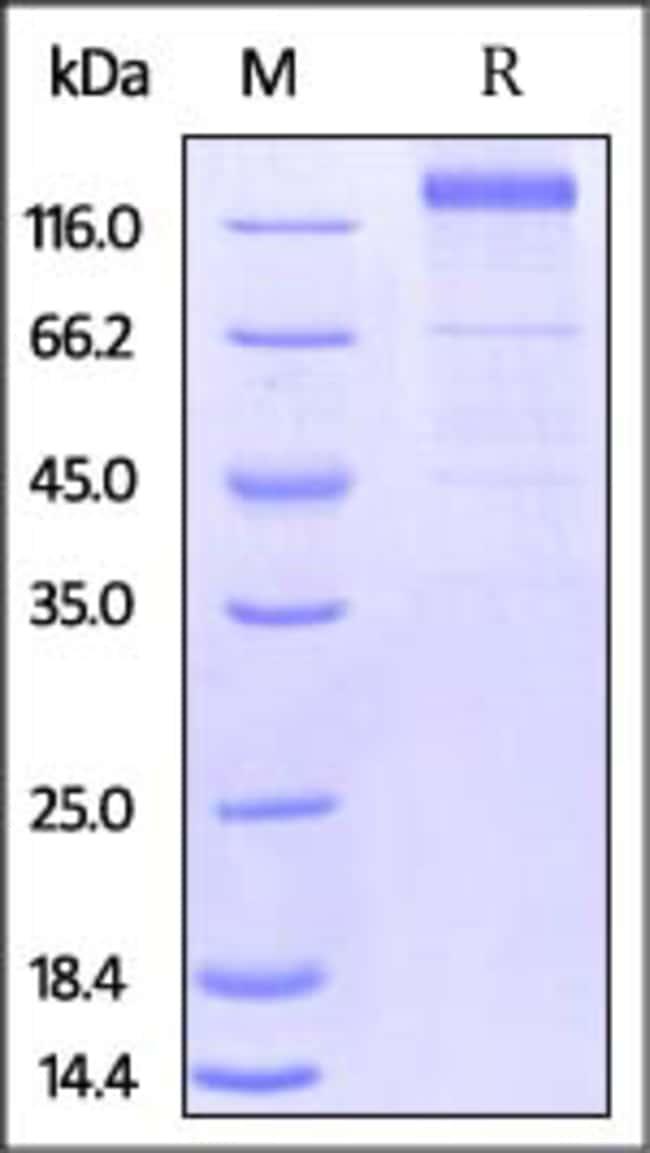 ACROBiosystemsHCMV Glycoprotein B (gB) Protein, Fc Tag 500 ug ACROBiosystemsHCMV Glycoprotein B (gB) Protein, Fc Tag