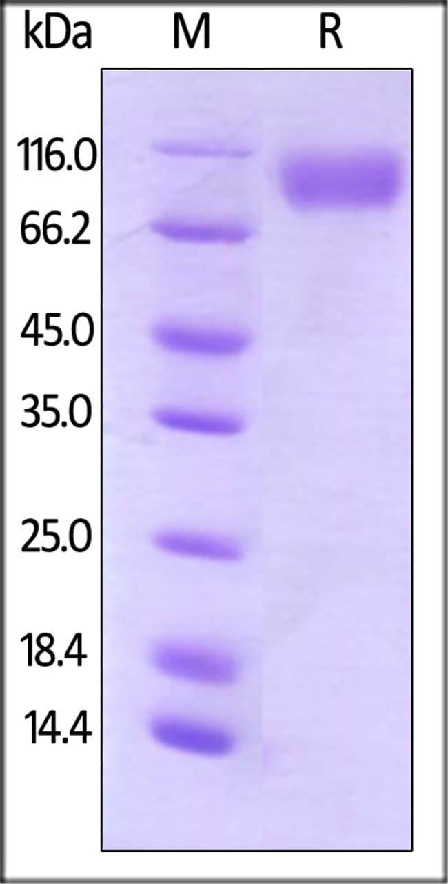 ACROBiosystems25UG Biotinylated Human CD200 R1 / CRTR2, Fc Tag,Avi Tag (Avitag)  Produkte