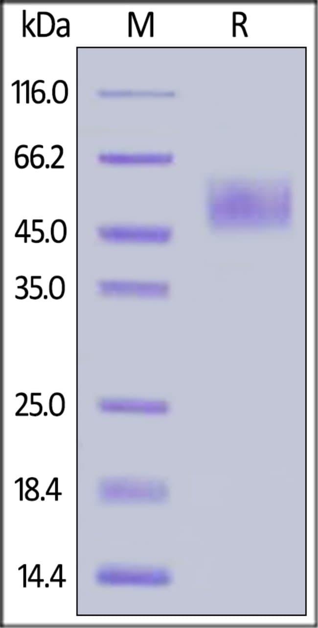ACROBiosystems100ug Human CRTAM Protein, His Tag(BLI verified)  Produkte