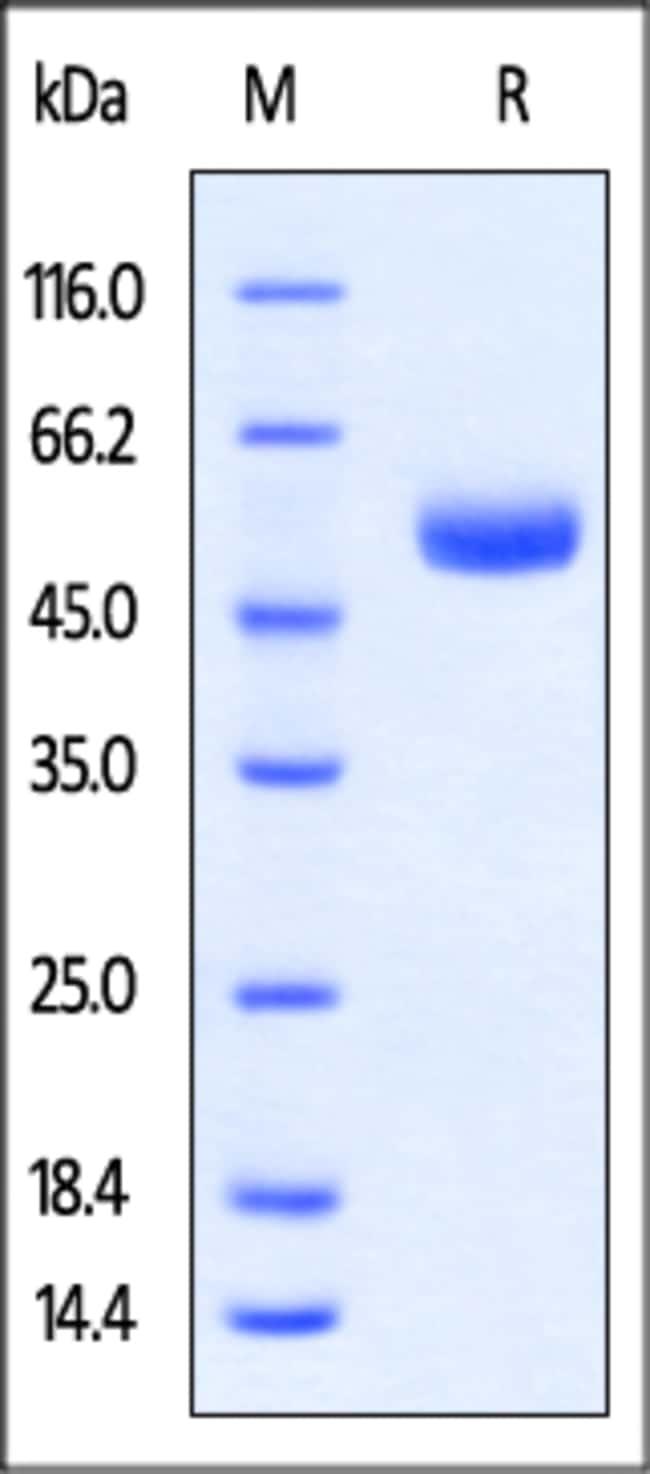 ACROBiosystemsRabbit CTLA-4 / CD152 Protein, Fc Tag 1 mg ACROBiosystemsRabbit CTLA-4 / CD152 Protein, Fc Tag