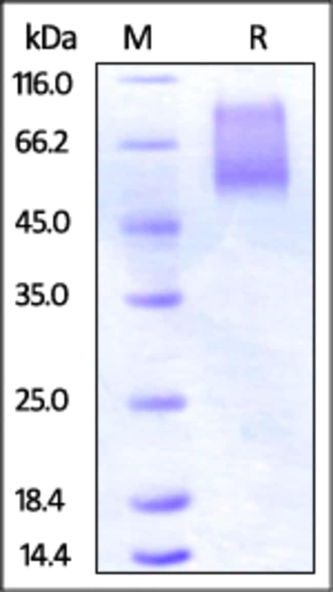 ACROBiosystems50UG Human CX3CL1 / Fractalkine Protein  Produkte