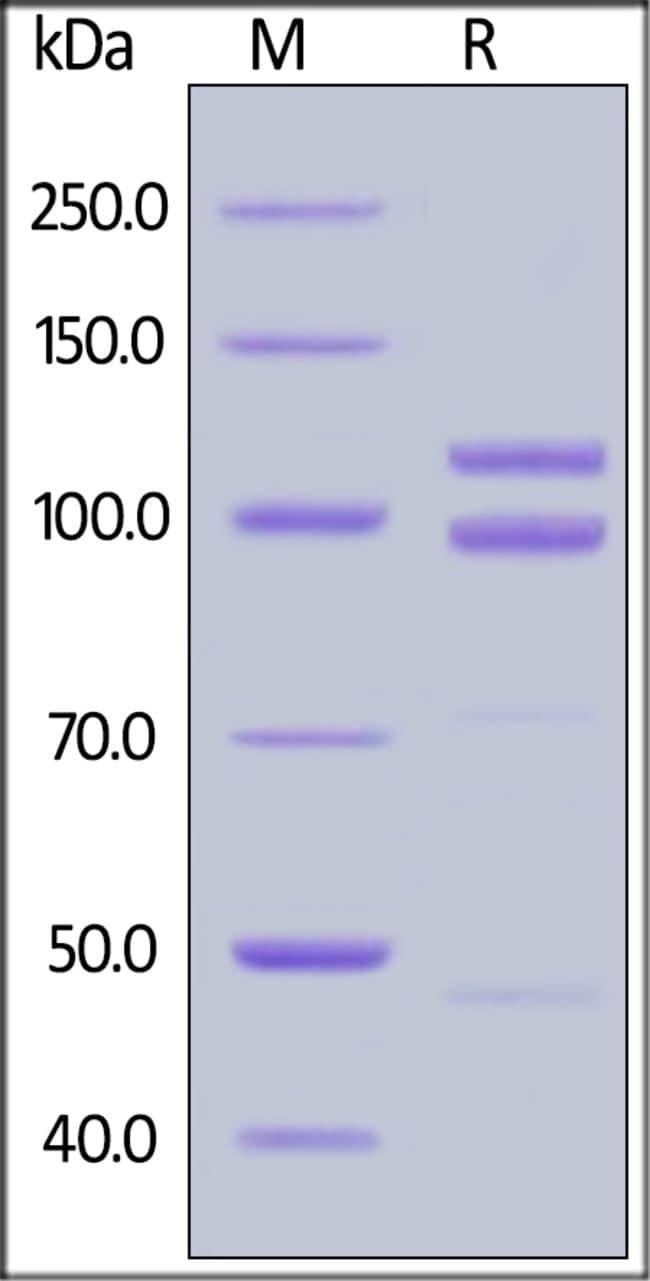ACROBiosystemsHuman E-Cadherin / Cadherin-1 Protein, Fc Tag 1 mg ACROBiosystemsHuman E-Cadherin / Cadherin-1 Protein, Fc Tag