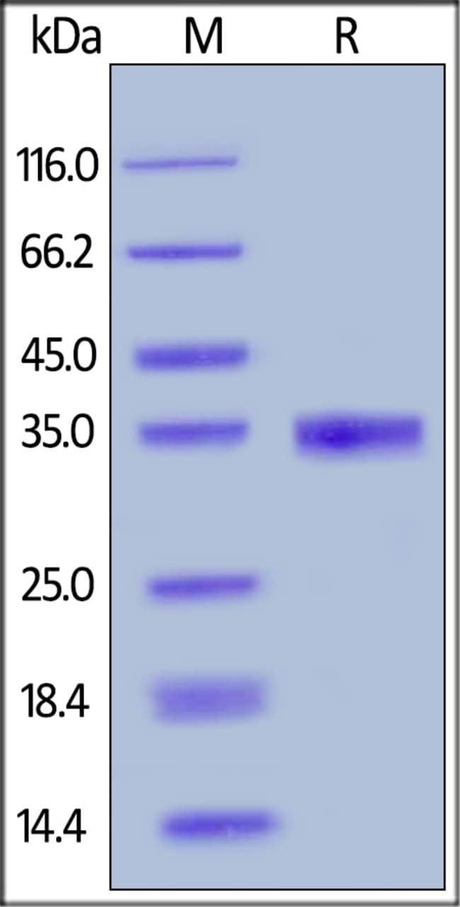 ACROBiosystemsHuman EGF Protein, Mouse IgG2a Fc Tag 100 ug ACROBiosystemsHuman EGF Protein, Mouse IgG2a Fc Tag