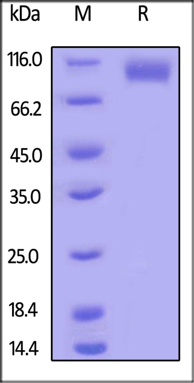 ACROBiosystemsHuman EGF R Protein, His Tag, low endotoxin 1 mg ACROBiosystemsHuman EGF R Protein, His Tag, low endotoxin