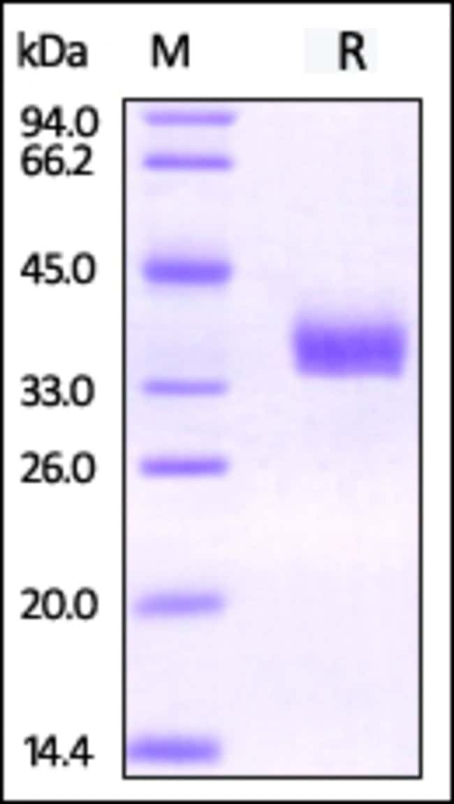 ACROBiosystemsBiotinylated Human EpCAM / TROP1 Protein, His Tag, ultra sensitivity (primary amine labeling) 25 ug ACROBiosystemsBiotinylated Human EpCAM / TROP1 Protein, His Tag, ultra sensitivity (primary amine labeling)