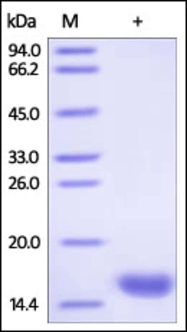 ACROBiosystemsHuman FABP3 / H-FABP Protein, His Tag 100 ug ACROBiosystemsHuman FABP3 / H-FABP Protein, His Tag