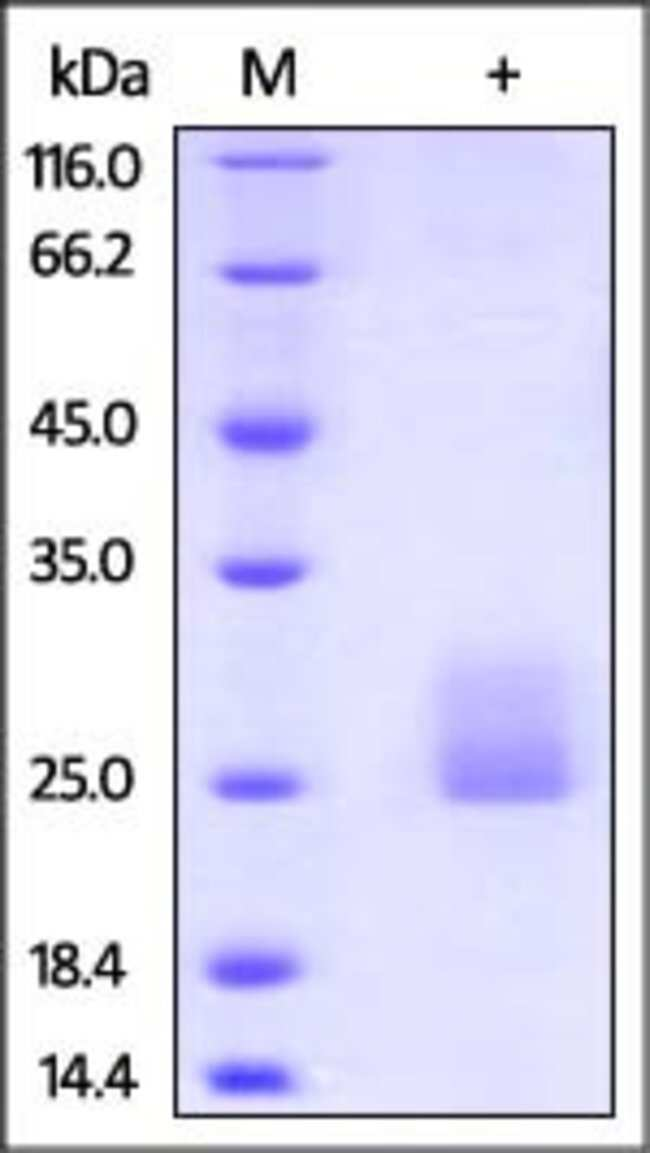 ACROBiosystemsActiveMax™ Human Flt-3 Ligand Protein, Tag Free 50 ug ACROBiosystemsActiveMax™ Human Flt-3 Ligand Protein, Tag Free