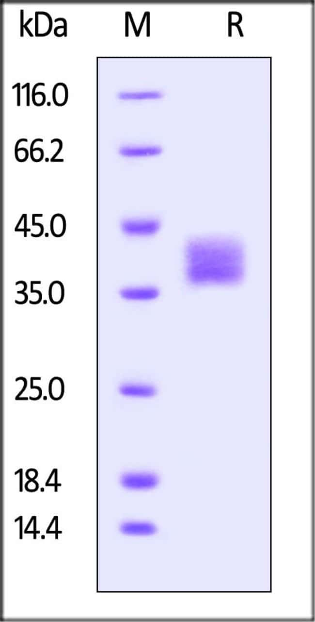ACROBiosystemsBiotinylated Mouse FOLR1 Protein, His, Avitag™ 200 ug ACROBiosystemsBiotinylated Mouse FOLR1 Protein, His, Avitag™