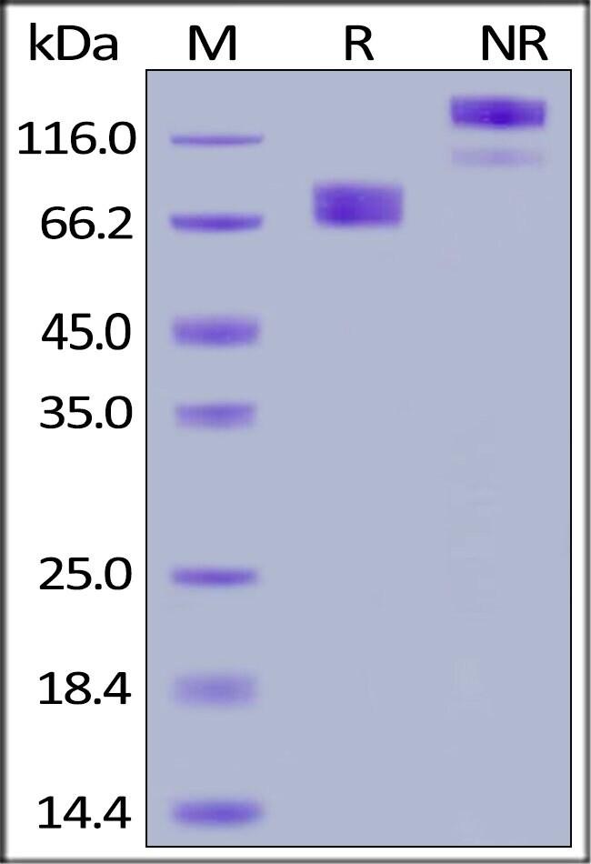 ACROBiosystemsHuman Growth Hormone R (GHR) Protein, Fc Tag 50 ug ACROBiosystemsHuman Growth Hormone R (GHR) Protein, Fc Tag