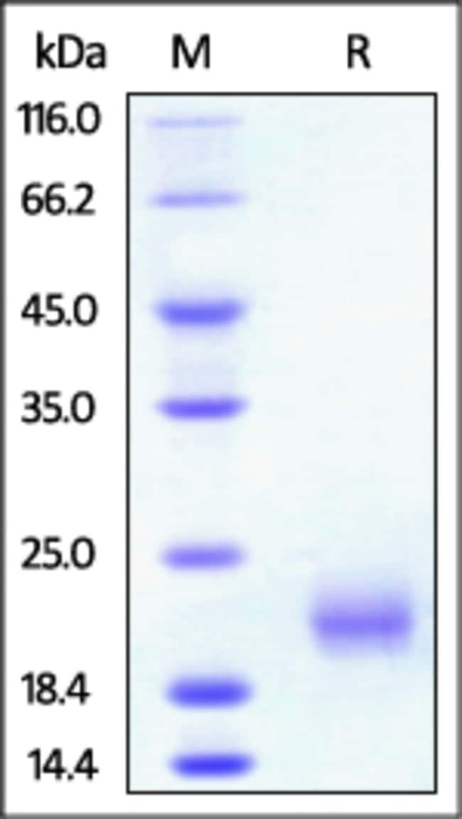ACROBiosystemsRat GITR / TNFRSF18 Protein, His Tag 100 ug ACROBiosystemsRat GITR / TNFRSF18 Protein, His Tag