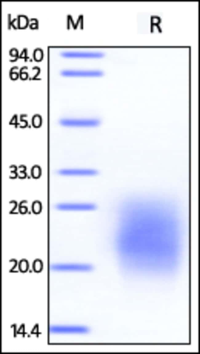 ACROBiosystemsBiotinylated Human GM-CSF, epitope tag free, ultra sensitivity (primary amine labeling) 25 ug ACROBiosystemsBiotinylated Human GM-CSF, epitope tag free, ultra sensitivity (primary amine labeling)