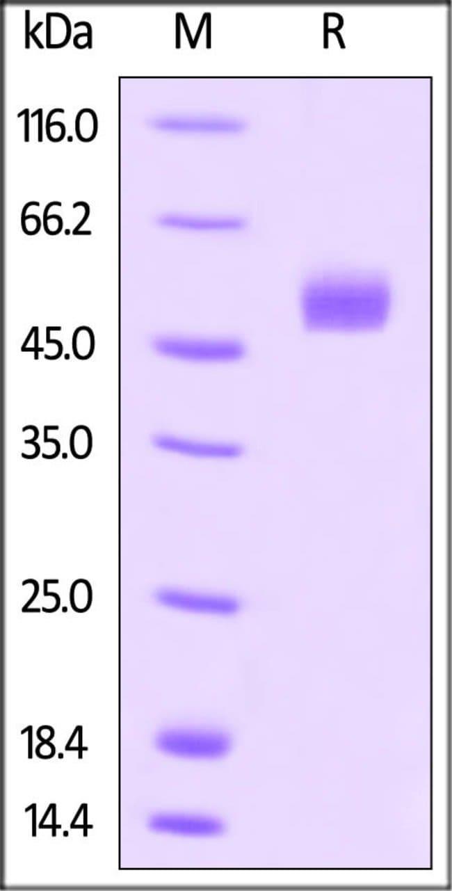 ACROBiosystemsHuman Gremlin / GREM1 Protein, Fc Tag 100 ug ACROBiosystemsHuman Gremlin / GREM1 Protein, Fc Tag