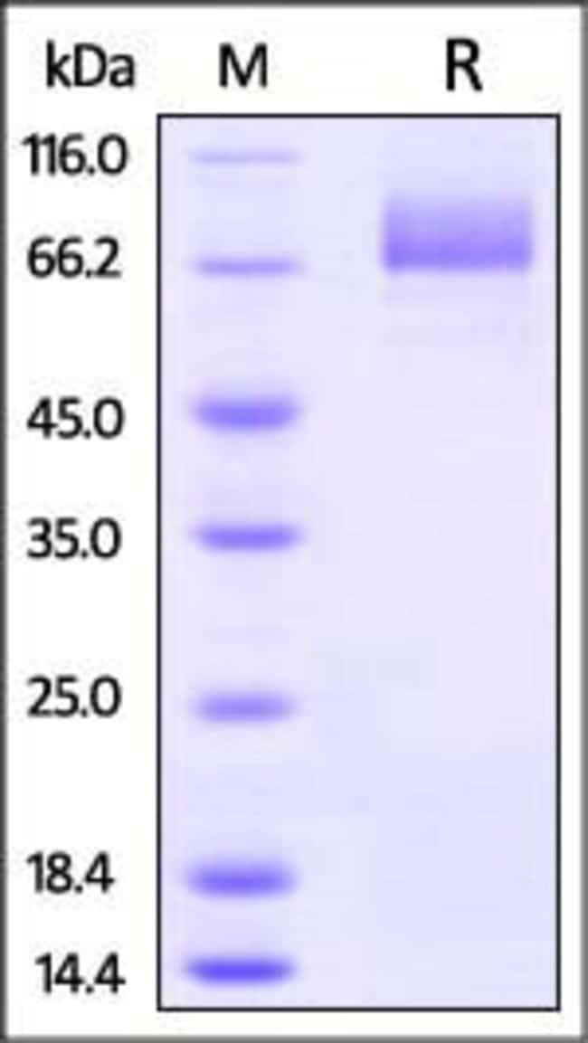 ACROBiosystemsInfluenza A [A/Hong Kong/483/97 (H5N1)] Hemagglutinin (HA) Protein, His Tag 1 mg ACROBiosystemsInfluenza A [A/Hong Kong/483/97 (H5N1)] Hemagglutinin (HA) Protein, His Tag