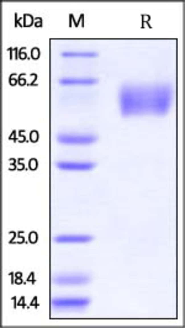 ACROBiosystemsInfluenza A [A/Guinea fowl/Hong Kong/WF10/99 (H9N2)] Hemagglutinin 1 (HA1) Protein, His Tag 100 ug ACROBiosystemsInfluenza A [A/Guinea fowl/Hong Kong/WF10/99 (H9N2)] Hemagglutinin 1 (HA1) Protein, His Tag