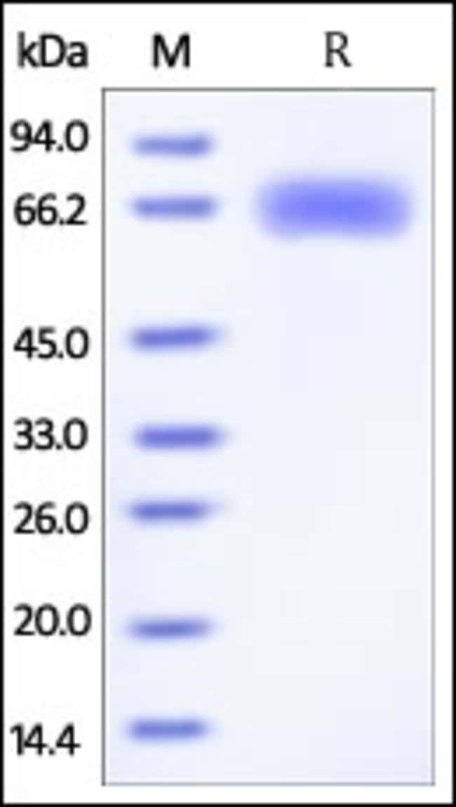 ACROBiosystemsInfluenza A [A/Shanghai/2/2013(H7N9)] Hemagglutinin (HA) Protein, His Tag 100 ug ACROBiosystemsInfluenza A [A/Shanghai/2/2013(H7N9)] Hemagglutinin (HA) Protein, His Tag