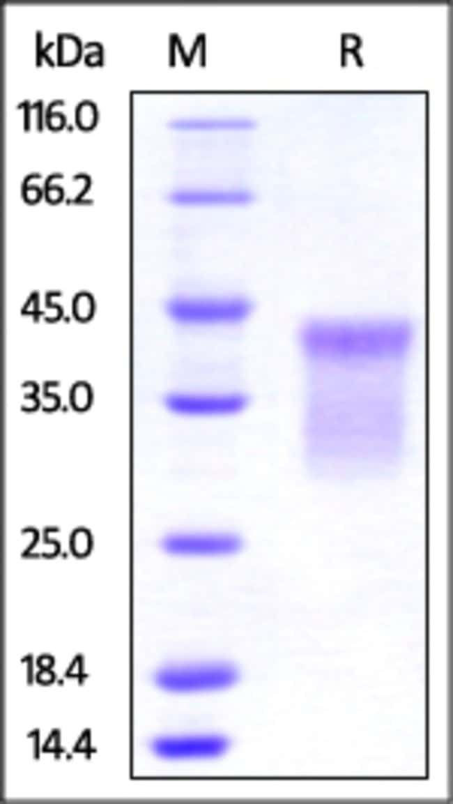 ACROBiosystemsHuman HVEM / TNFRSF14 Protein, His Tag 100 ug ACROBiosystemsHuman HVEM / TNFRSF14 Protein, His Tag