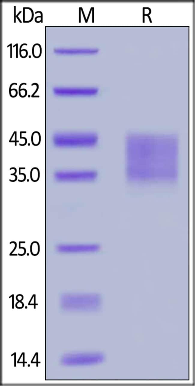 ACROBiosystemsHuman IFN-alpha/beta R2 Protein, His Tag 1 mg ACROBiosystemsHuman IFN-alpha/beta R2 Protein, His Tag