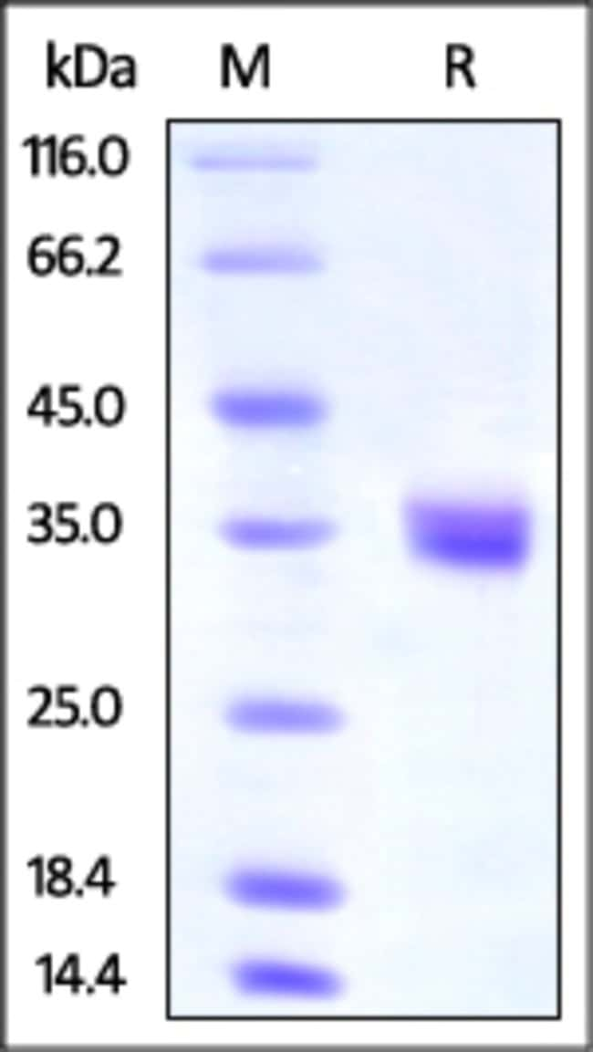ACROBiosystemsHuman IGFBP-4 Protein, His Tag 1 mg ACROBiosystemsHuman IGFBP-4 Protein, His Tag