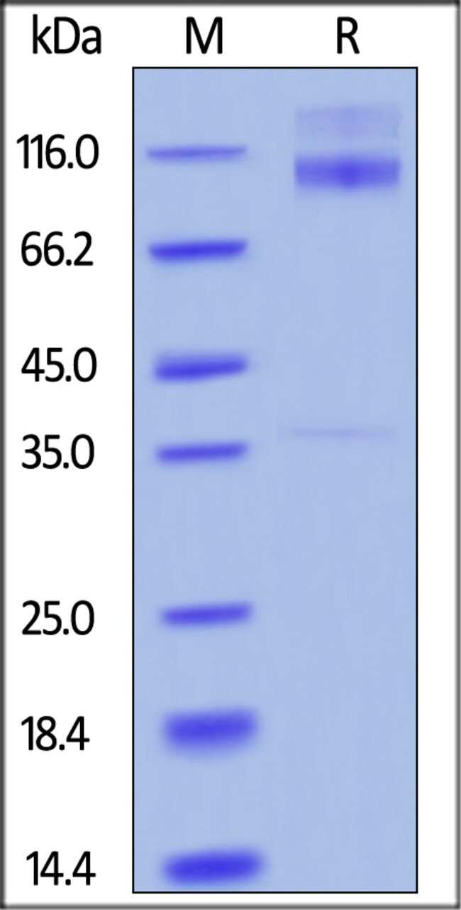 ACROBiosystemsHuman IGF-I R / CD221 Protein, His Tag 100 ug ACROBiosystemsHuman IGF-I R / CD221 Protein, His Tag