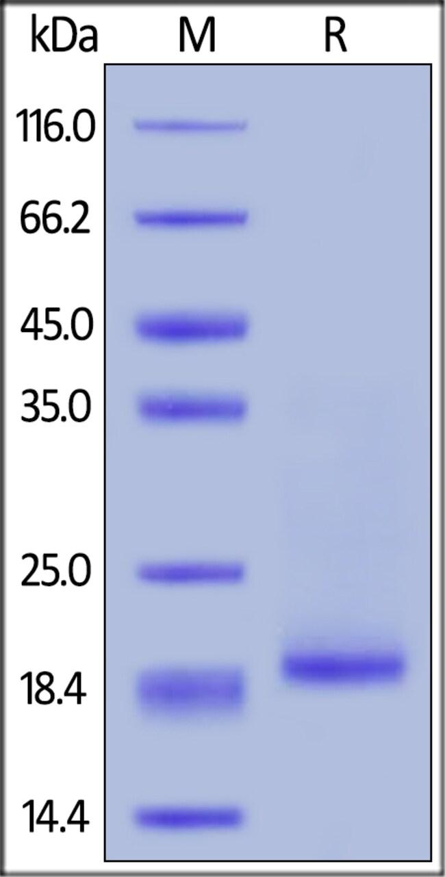 ACROBiosystemsHuman IL-10 Protein, His Tag 50 ug ACROBiosystemsHuman IL-10 Protein, His Tag