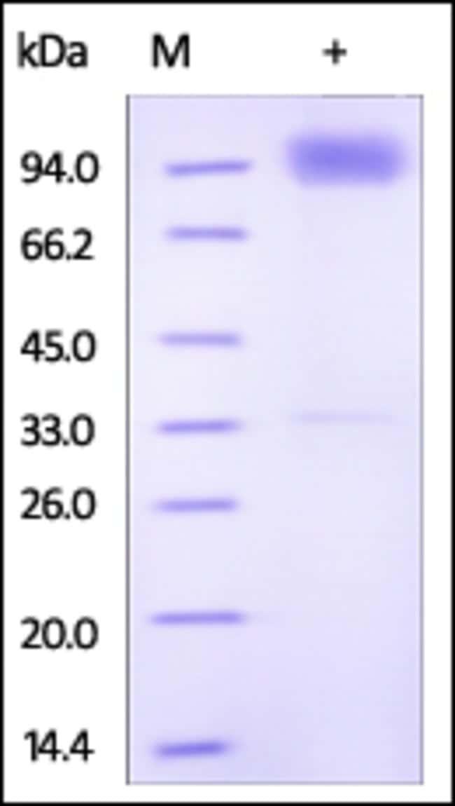 ACROBiosystemsHuman IL-18 R1 / CD218a Protein, Fc Tag 200 ug ACROBiosystemsHuman IL-18 R1 / CD218a Protein, Fc Tag