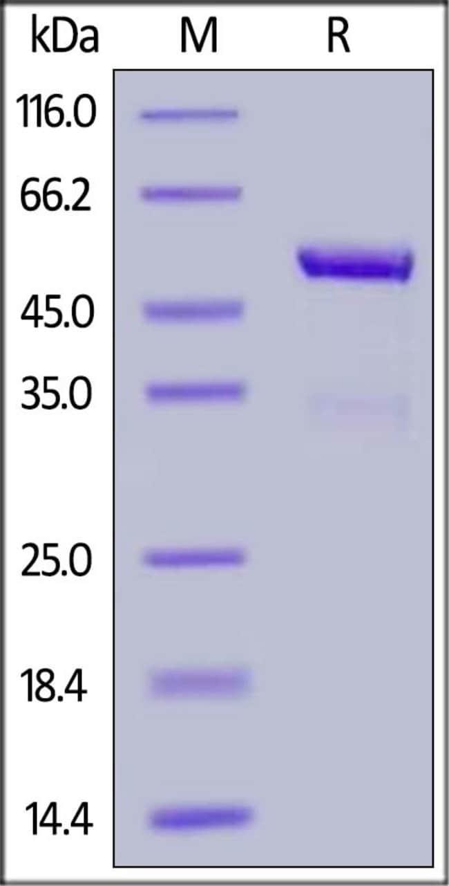 ACROBiosystemsBiotinylated Human IL-21 Protein, Fc,Avitag™ 200 ug ACROBiosystemsBiotinylated Human IL-21 Protein, Fc,Avitag™