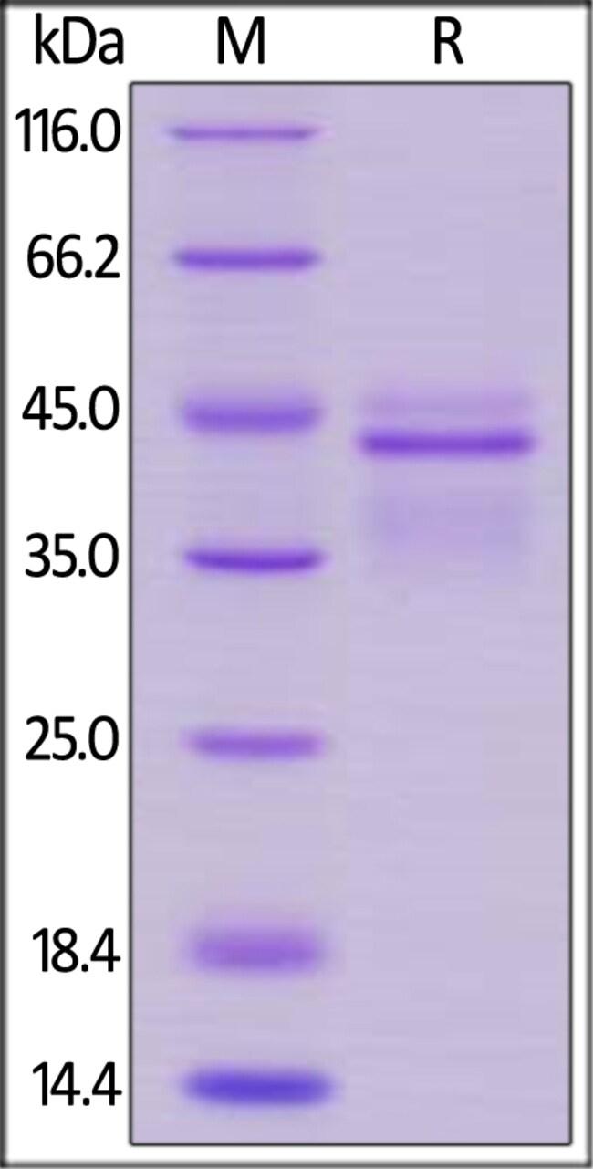ACROBiosystems20UG Human IL-12B & IL-12A Heterodimer Protein, His Tag & Flag Tag  Produkte