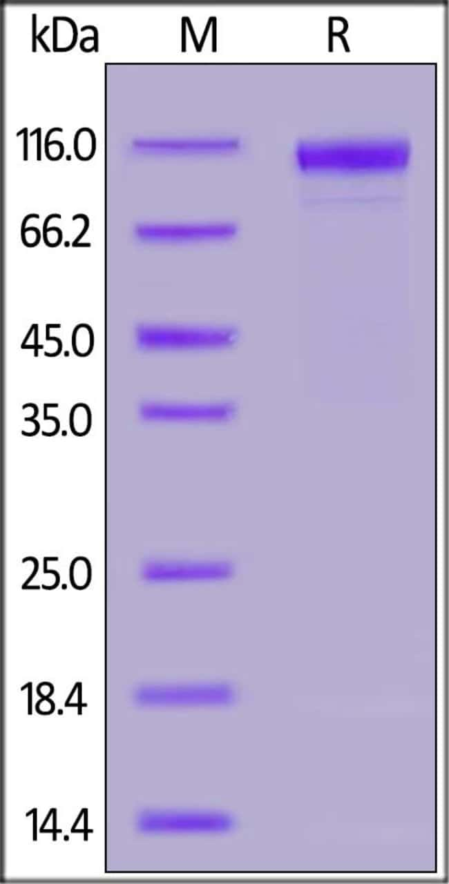 ACROBiosystems100UG Human IL-27 Ra / TCCR Protein, Fc Tag  Produkte
