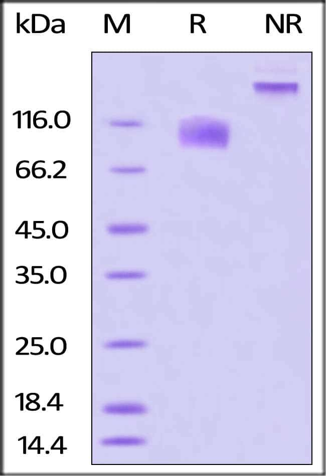 ACROBiosystemsBiotinylated Human IL-17 RA / CD217 Protein, Fc, Avitag™ 25 ug ACROBiosystemsBiotinylated Human IL-17 RA / CD217 Protein, Fc, Avitag™