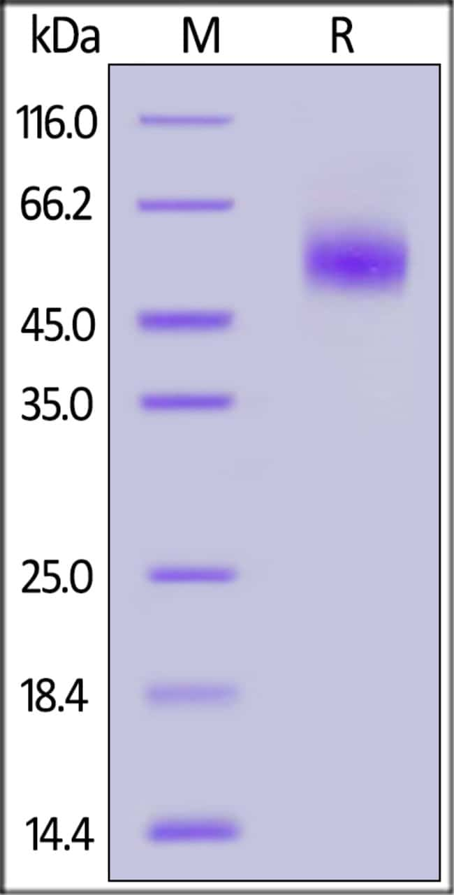 ACROBiosystems100ug Mouse IL-3 R alpha / CD123 Protein, His Tag  Produkte