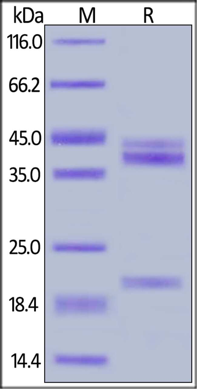 ACROBiosystems50UG Human IL-23 alpha & IL-12 beta Heterodimer Protein  Produkte