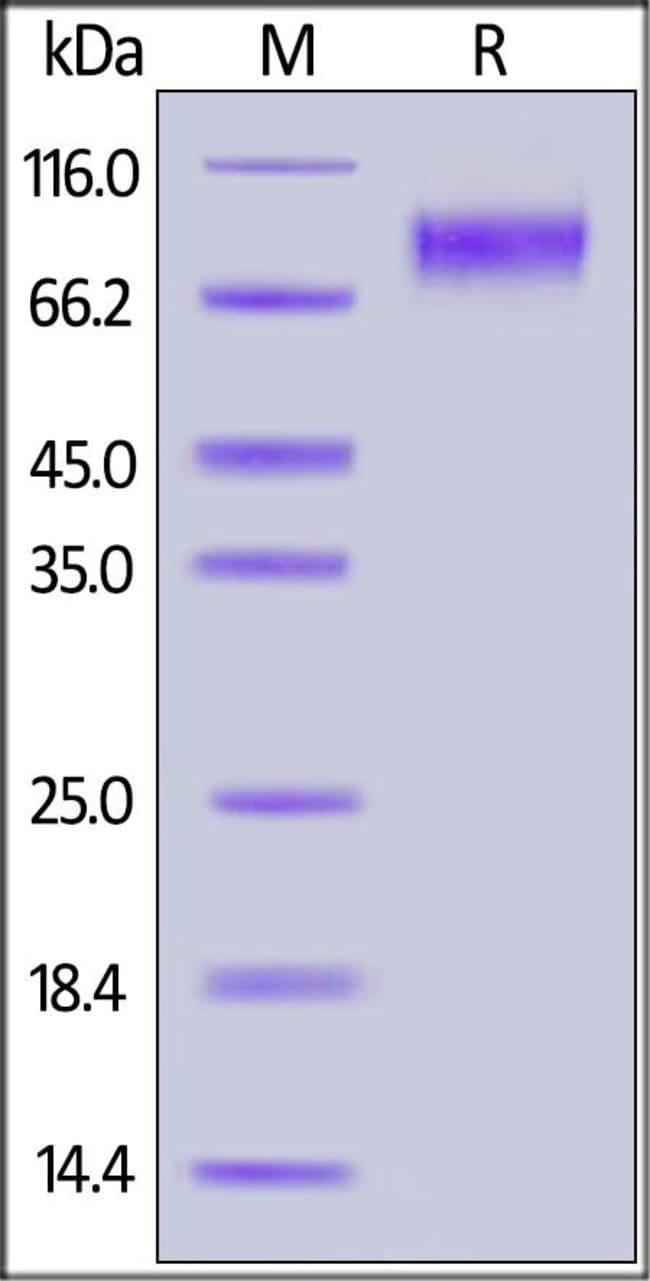 ACROBiosystemsHuman IL-2 R gamma / CD132 Protein, Fc Tag 100 ug ACROBiosystemsHuman IL-2 R gamma / CD132 Protein, Fc Tag