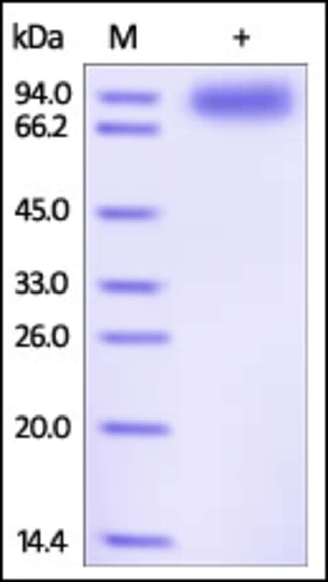 ACROBiosystemsHuman IL-1 RAcP / IL-1 R3 Protein, Fc Tag 100 ug ACROBiosystemsHuman IL-1 RAcP / IL-1 R3 Protein, Fc Tag