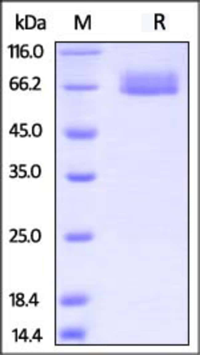 ACROBiosystemsCynomolgus / Rhesus macaque IL-4 R alpha / CD124 Protein, Fc Tag 50 ug ACROBiosystemsCynomolgus / Rhesus macaque IL-4 R alpha / CD124 Protein, Fc Tag