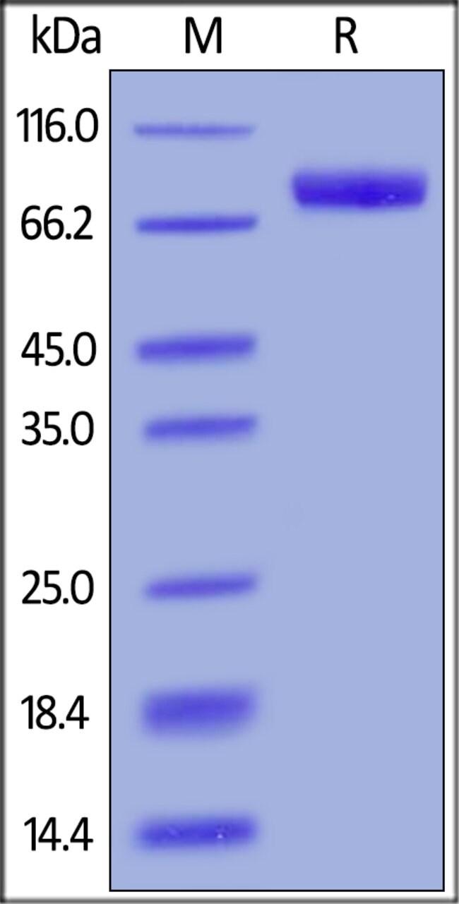 ACROBiosystems100ug Human IL-6 R alpha / CD126 Protein, Fc Tag  Produkte
