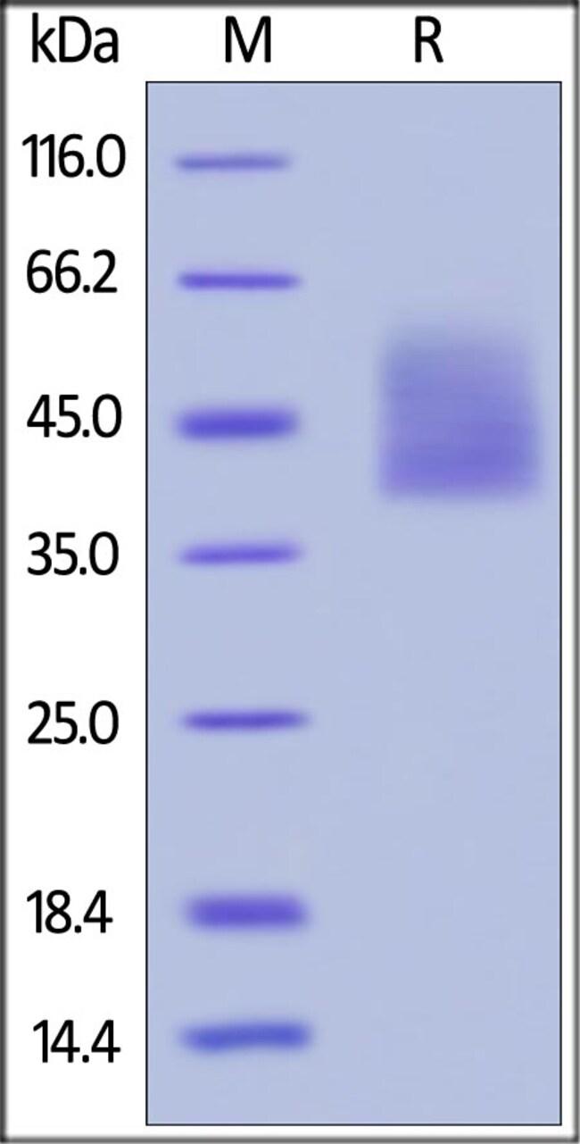 ACROBiosystems25UG Biotinylated Human IL-4 R alpha / CD124 Protein, Avi Tag (Avitag)  Produkte