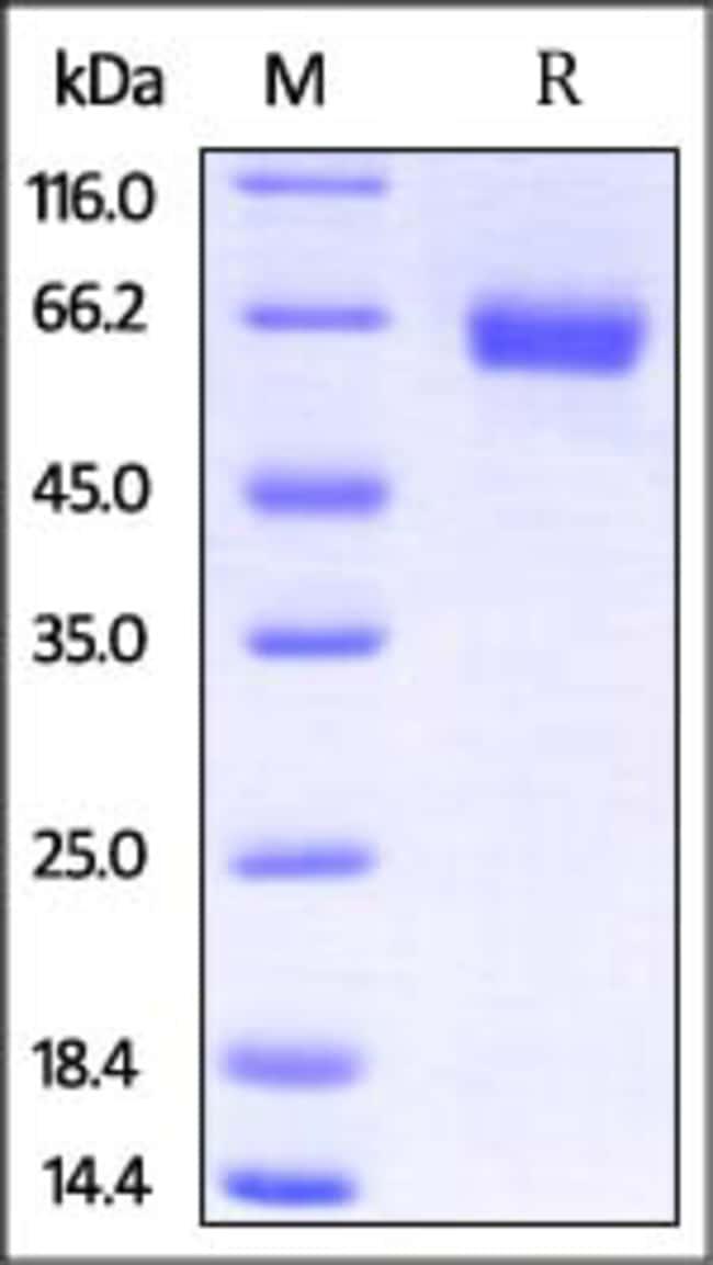 ACROBiosystems100UG Mouse IL-4 R alpha / CD124 Protein, Fc Tag  Produkte