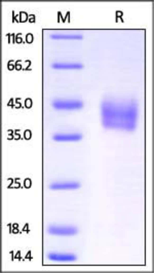 ACROBiosystems Mouse IL-4 R alpha / CD124 Protein, His Tag 100 ug ACROBiosystems Mouse IL-4 R alpha / CD124 Protein, His Tag