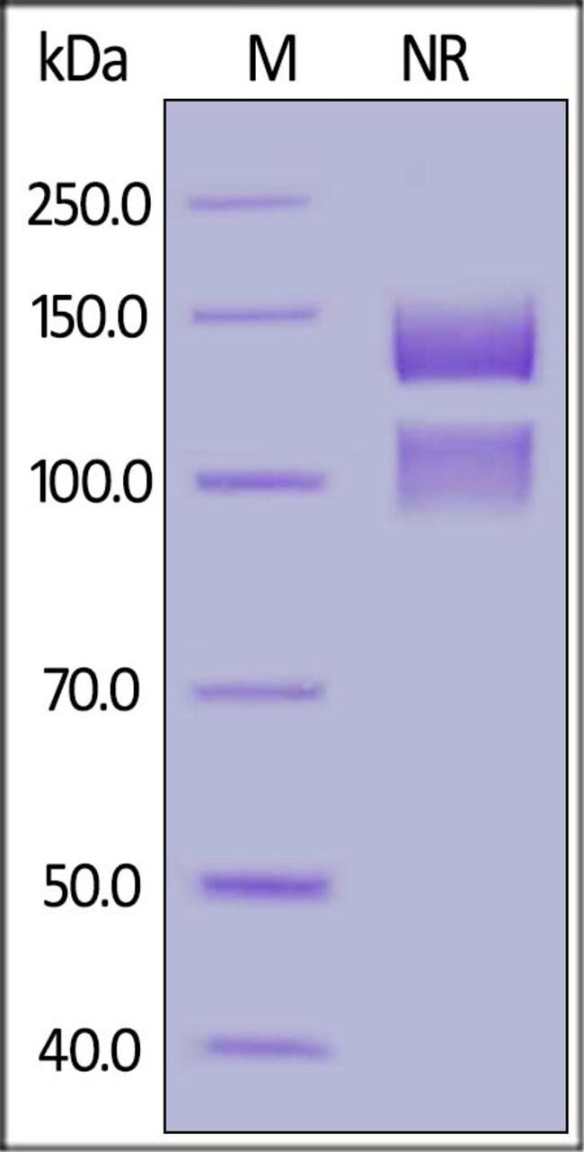 ACROBiosystemsHuman Integrin alpha 5 beta 1 (ITGA5&ITGB1) Heterodimer Protein, His Tag&Tag Free 1 mg ACROBiosystemsHuman Integrin alpha 5 beta 1 (ITGA5&ITGB1) Heterodimer Protein, His Tag&Tag Free