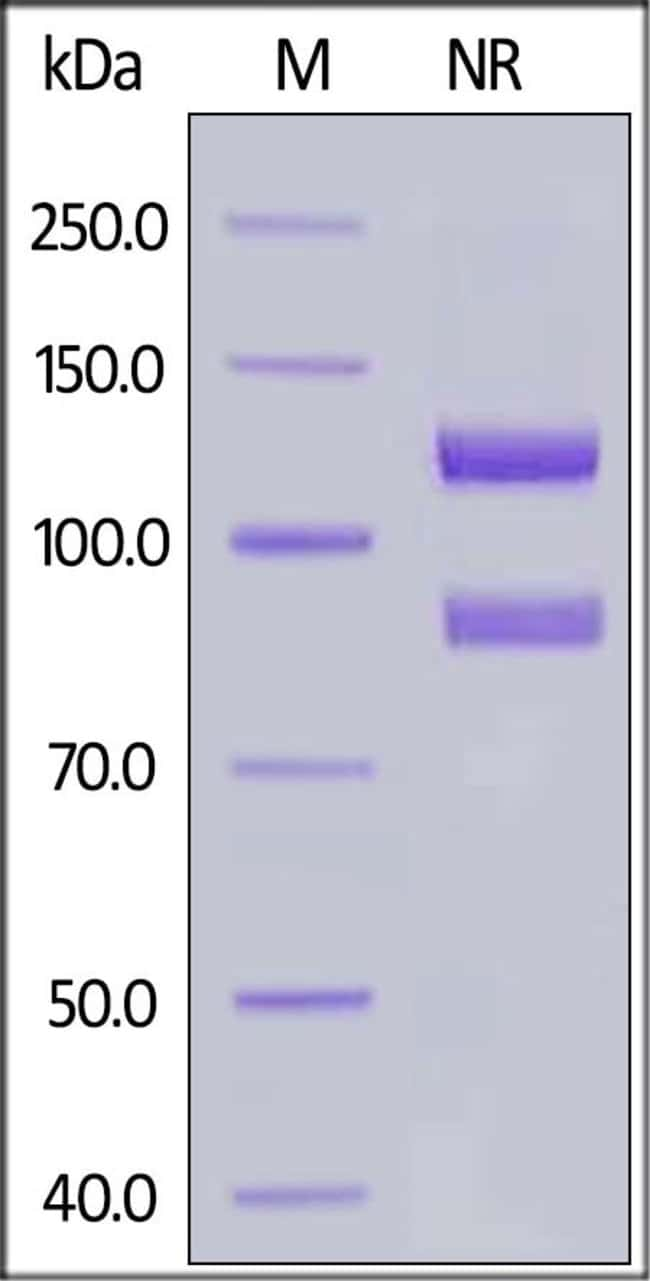 ACROBiosystemsHuman Integrin alpha 2b beta 3 (ITGAIIb&ITGB3) Heterodimer Protein, His Tag&Tag Free 1 mg ACROBiosystemsHuman Integrin alpha 2b beta 3 (ITGAIIb&ITGB3) Heterodimer Protein, His Tag&Tag Free