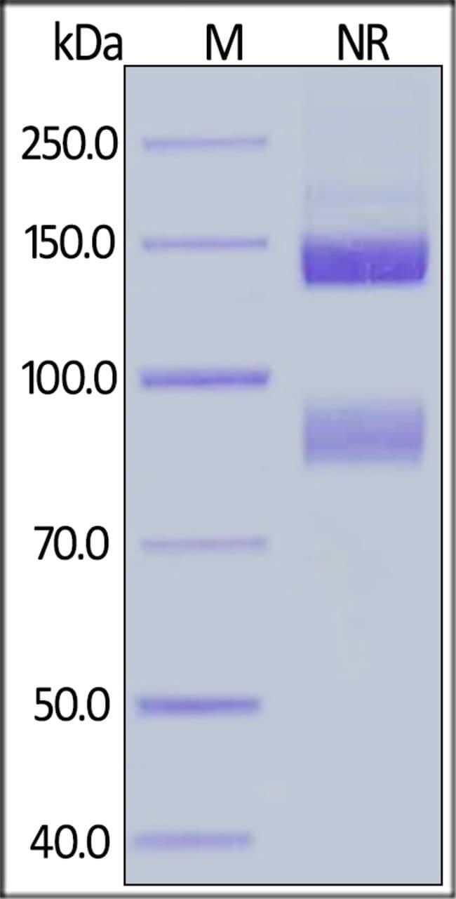 ACROBiosystemsHuman Integrin alpha V beta 5 (ITGAV&ITGB5) Heterodimer Protein, His Tag&Tag Free 1 mg ACROBiosystemsHuman Integrin alpha V beta 5 (ITGAV&ITGB5) Heterodimer Protein, His Tag&Tag Free