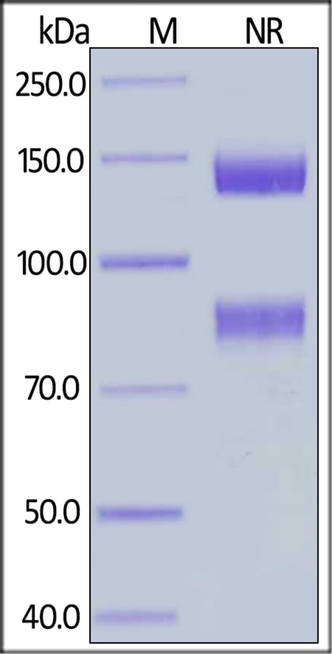 ACROBiosystemsHuman Integrin alpha V beta 8 (ITGAV&ITGB8) Heterodimer Protein, His Tag&Tag Free 100 ug ACROBiosystemsHuman Integrin alpha V beta 8 (ITGAV&ITGB8) Heterodimer Protein, His Tag&Tag Free