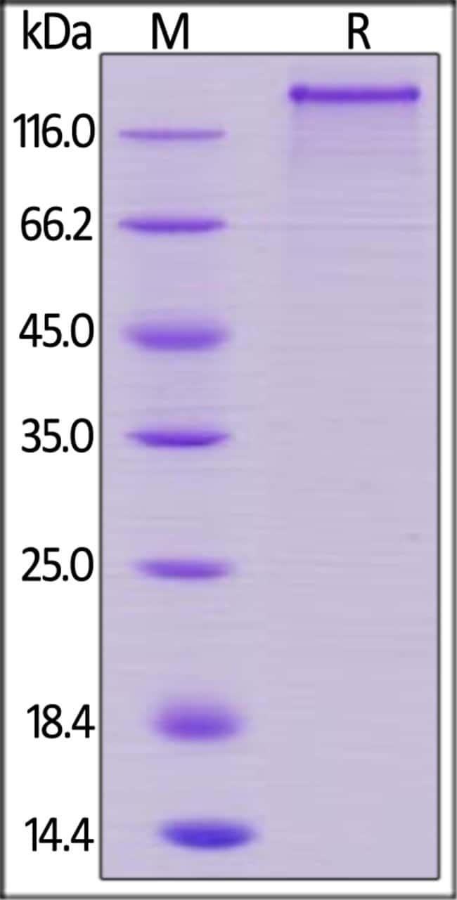 ACROBiosystemsHuman Jagged 1 / JAG1 Protein, His Tag 1 mg ACROBiosystemsHuman Jagged 1 / JAG1 Protein, His Tag