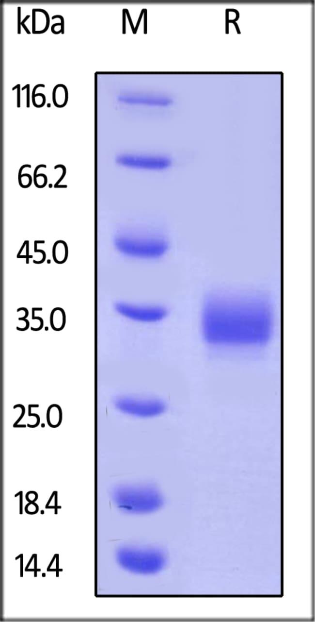 ACROBiosystemsBiotinylated Human LAIR1 / CD305 Protein, His, Avitag™ 25 ug ACROBiosystemsBiotinylated Human LAIR1 / CD305 Protein, His, Avitag™